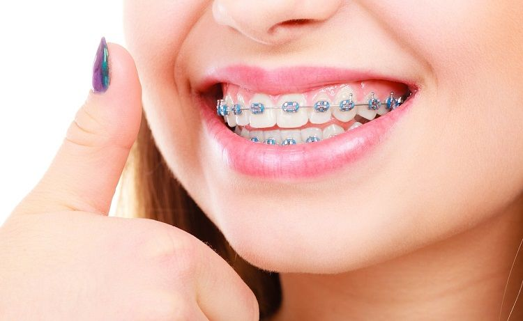 How Experienced Orthodontists Help You Straighten Your Teeth – Believe In Doctors Studio