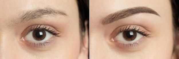 Eyebrow Hair Transplantation in Tirupati - Dr.Sajjas.in