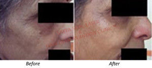 Treatment for instant glow in Delhi - Non Surgical Facelift