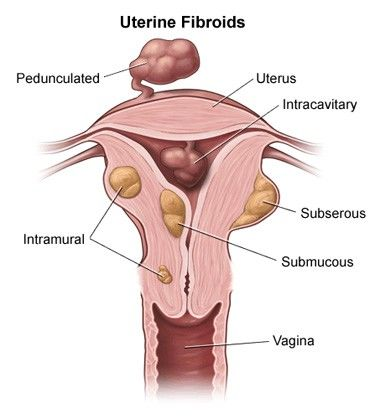 Fibroid removal myomectomy Surgery in India - Healing Touristry