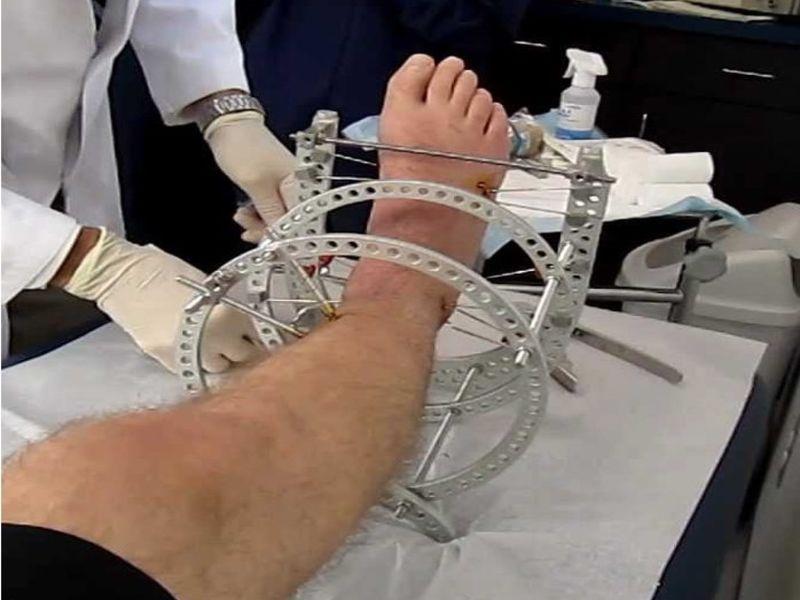 Fijadores externos en el tratamiento de fracturas tibiales