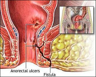 Ayurvedic Treatment for Fistula in Ano   Fistula Treatment in Ayurveda