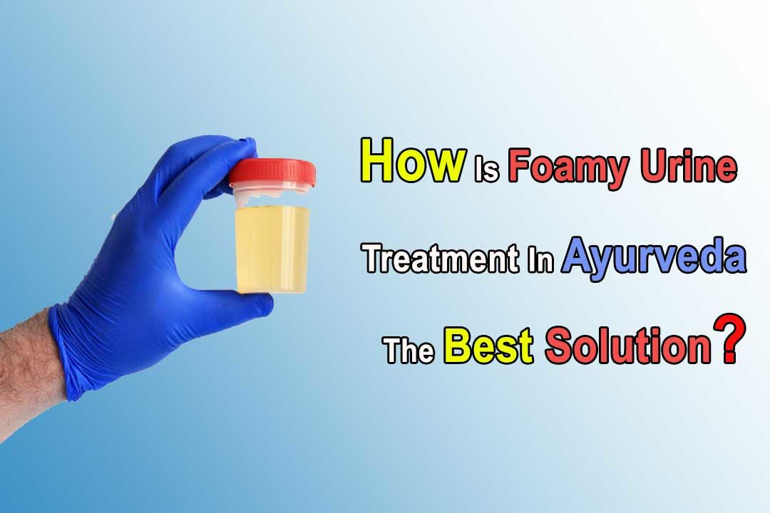 How Is Foamy Urine Treatment In Ayurveda The Best Solution?