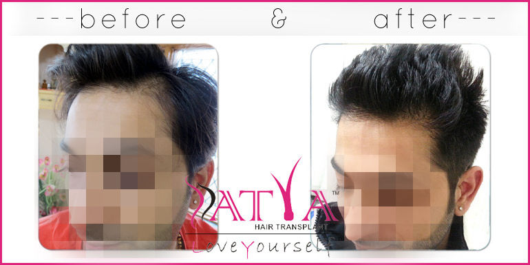 FUE Hair Transplant Clinic, Cheap Fue treatment cost in Delhi, India