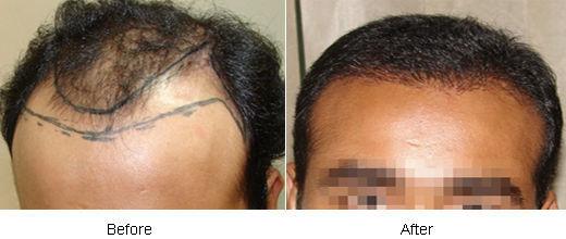 Automated FUE Hair Transplant in Dubai, UAE | Hair Transplant Dubai