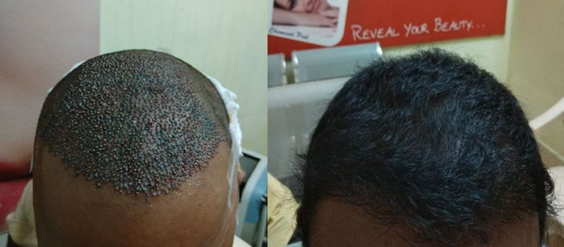 FUE Hair Transplant in Tirupati | Best Hair clinic in Tirupati