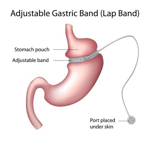 Gastric Banding Surgery in India - Healing Touristry