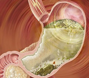 Diabetic Gastroparesis Symptoms, Diet and Treatment | Herbal Care Products