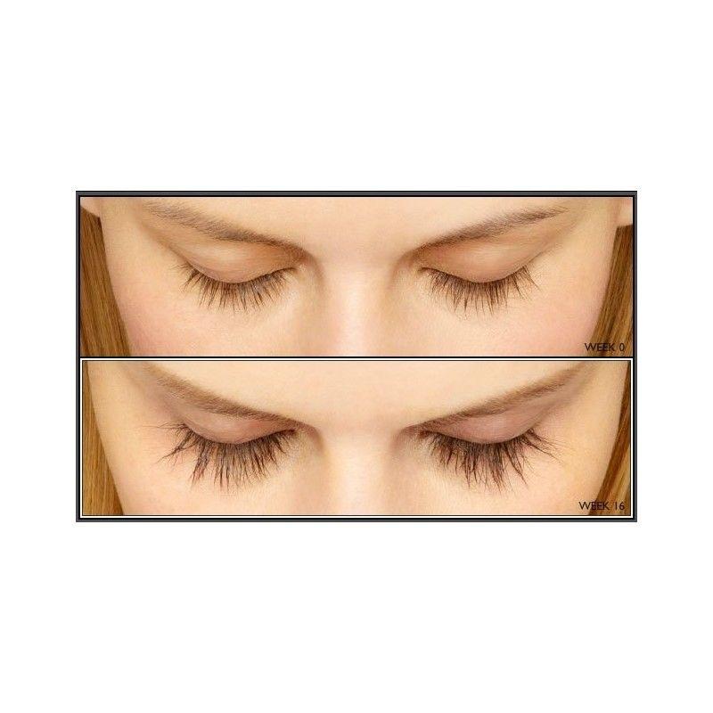 Generic Latisse. Eyelashes longer drops Bimatoprost 0.03% 3ml at Dx-Health