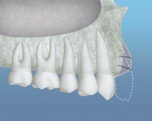 Bone Grafting Seattle, WA - Bone Grafting for Dental Implants | PSOMS