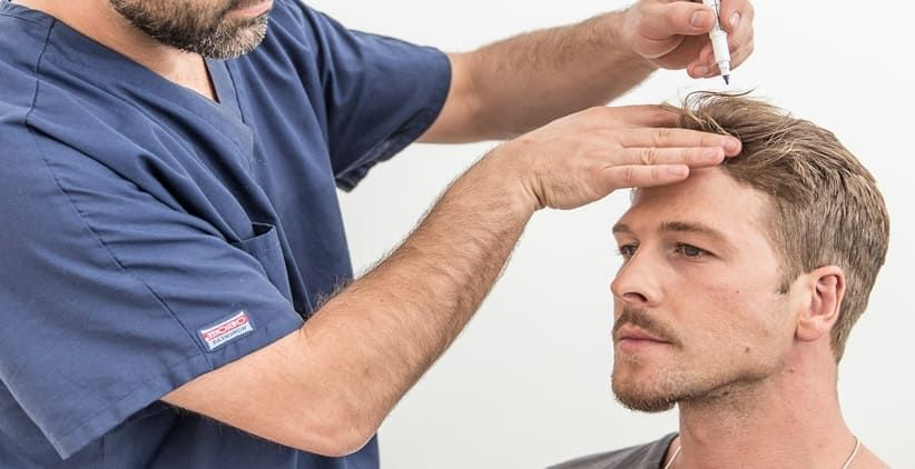 Why Hair Transplant is the Best Option for Hair Regrowth?
