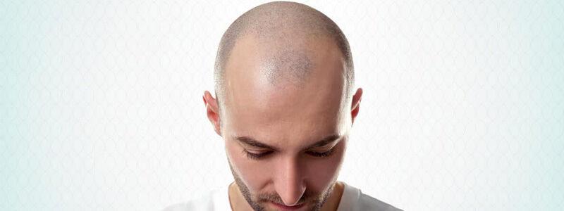 The Art of Grafts Placement in Hair Transplantation   Hair Transplant Dubai