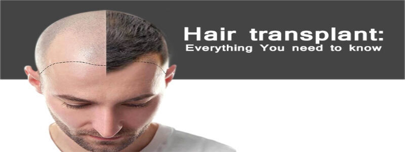 Everything You Need to Know About Hair Transplants | Hair Transplant Dubai