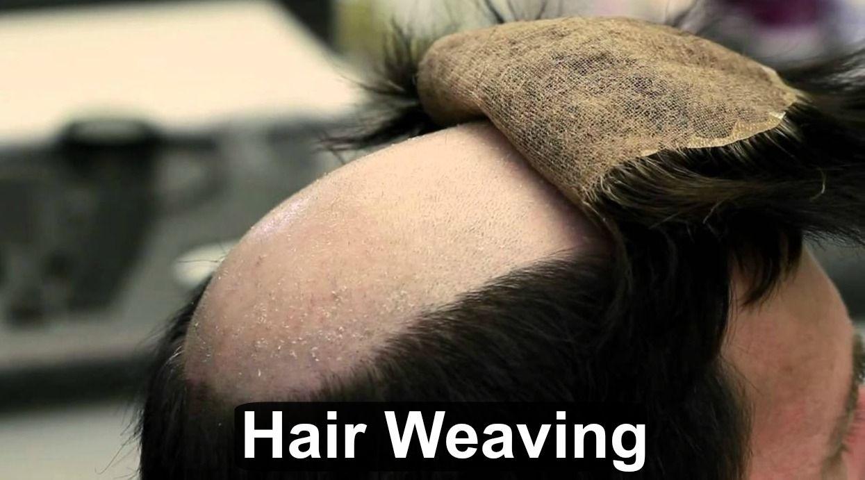 Hair Weaving treatment clinic in India | Hair Transplant India