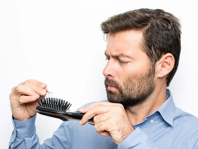 How Can I Cure My Hairs From Hair Loss? - Best Hair Transplantation Dubai