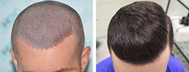 FUE Hair Transplant Recovery - Hair Transplant Dubai Clinic : powered by Doodlekit