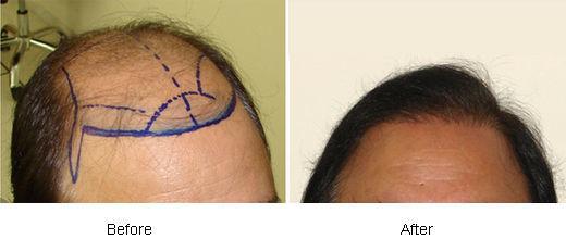 Surgical Hair Restoration Vs Hair Replacement | Hair Transplant Dubai
