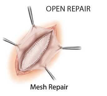Inguinal Hernia Repair Surgery in India - Healing Touristry