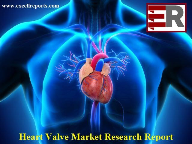 Global Heart Valve Market Key Country Analysis and Regional Forecast 2014-2024