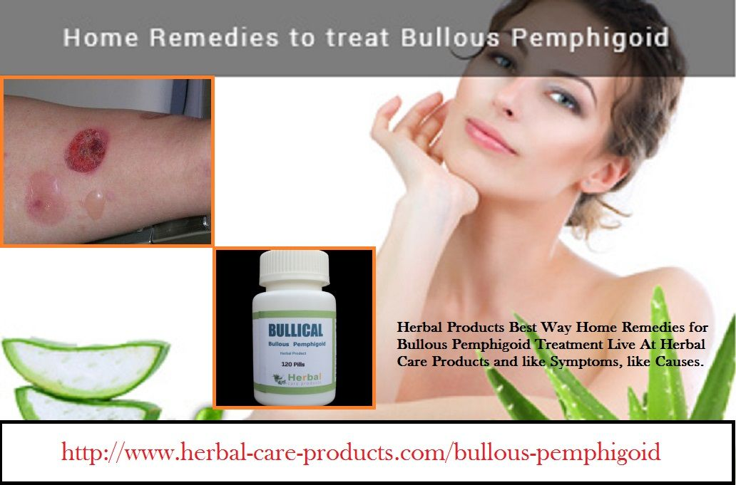 11 Herbal Treatment for Bullous Pemphigoid - Herbal Care Products
