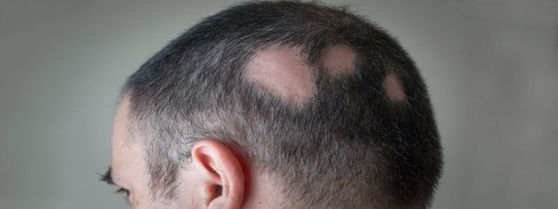 How Long Does it take for Alopecia Treatment to fully Cure? | Hair Transplant Dubai