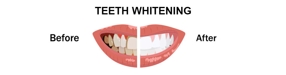 How Long The Effects of Teeth Whitening Last | Teeth Whitening in Pune