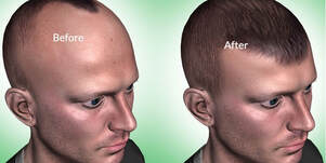 How much time is Required for FUE hair transplant to Recover