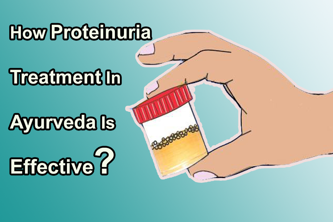 How Proteinuria Treatment In Ayurveda Is Effective?