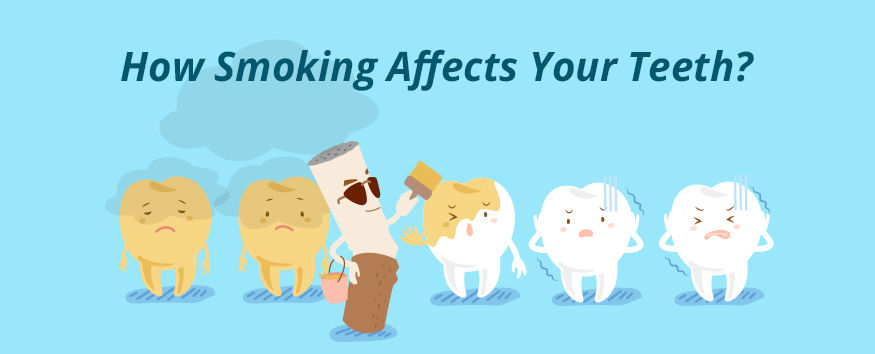 How Smoking Affects Your Teeth?