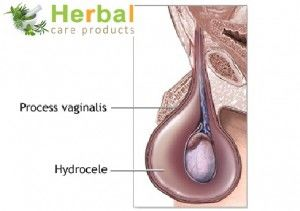 Hydrocele Symptoms, Causes, Diagnosed And Treatment - Herbal Care Products Blog