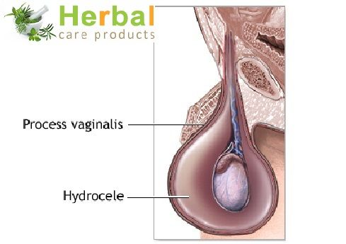 Hydrocele Symptoms, Causes, Diagnosed And Treatment - Herbal Care Products