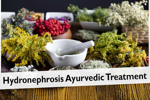 Hydronephrosis Ayurvedic Treatment: Best Way to Relieve Hydronephrosis