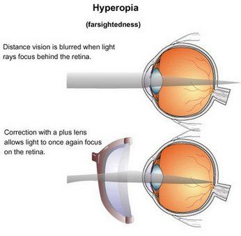 Hyperopia (Farsightedness) Treatment in India - Healing Touristry
