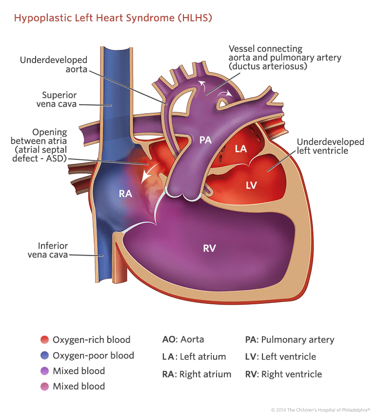 Hypoplastic Left Heart Syndrome (HLHS) Treatment in India