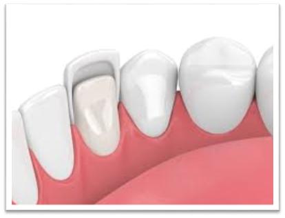 Dental Veneers and their Benefits