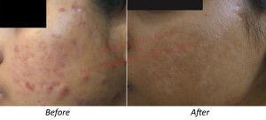 Chemical peel - Glow peel Treatment Delhi, Skin peel treatment for Acne