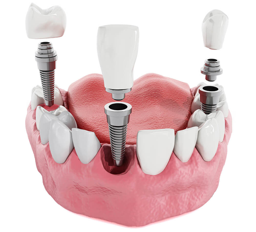 Dentist for Implants - Cost of dental Implants in Mumbai - Smile Store