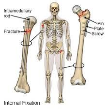 Internal Fixation of Fractures Surgery in India - Healing Touristry