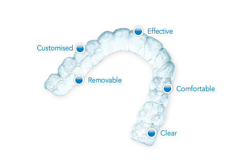 Invisalign Aligners Treatment in India - Healing Touristry