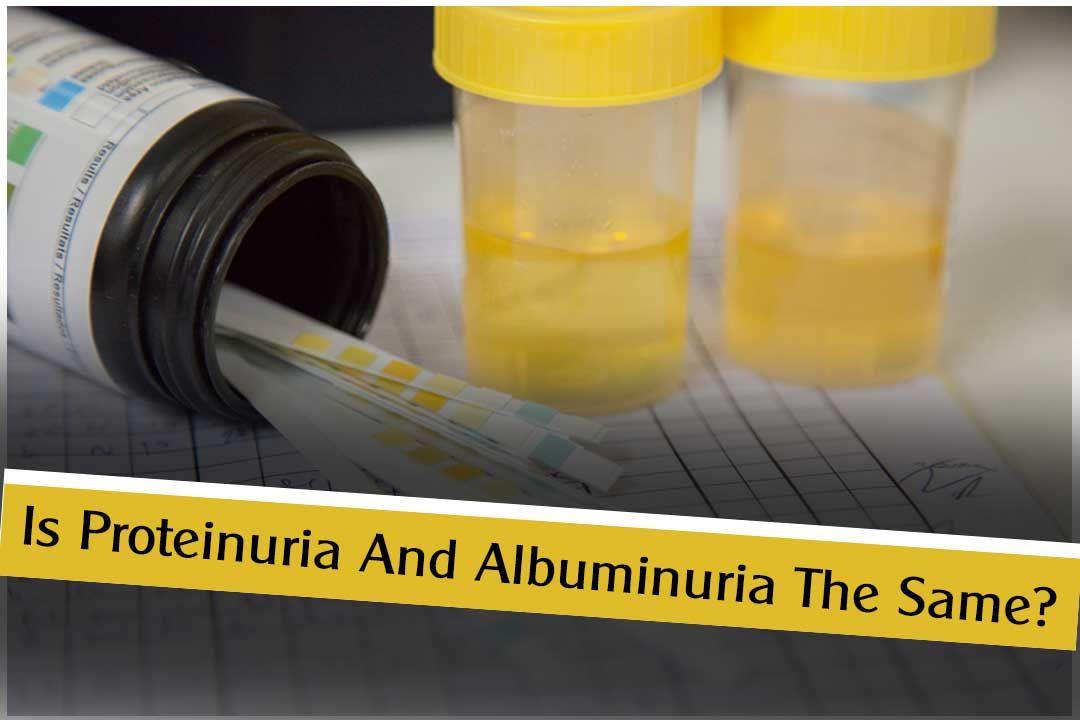 Ayurvedic Treatment and Medicine for Albuminuria