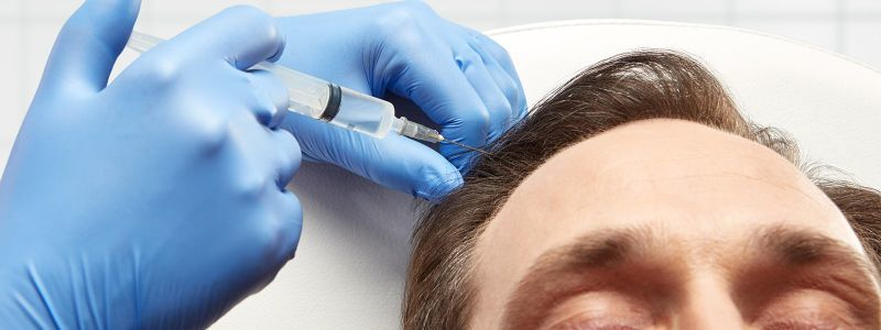 Does PRP Hair Treatment Really Work? | Hair Transplant Dubai