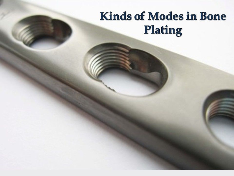 Kinds of Modes in Bone Plating