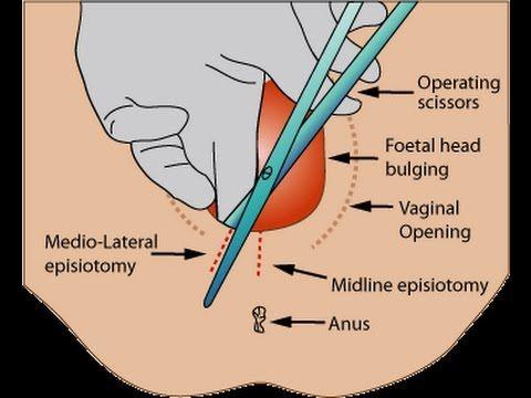 Labiaplasty (Labia Rejuvenation) Surgery in India - Healing Touristry