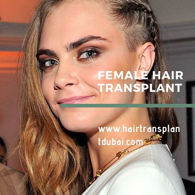 HAIR TRANSPLANT FOR WOMEN - Abia amir - Blog.