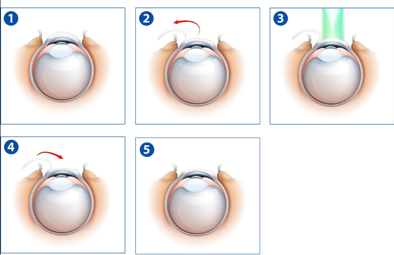 Lasik Eye Surgery cost In Bangalore | Lasik Eye Surgery cost In India