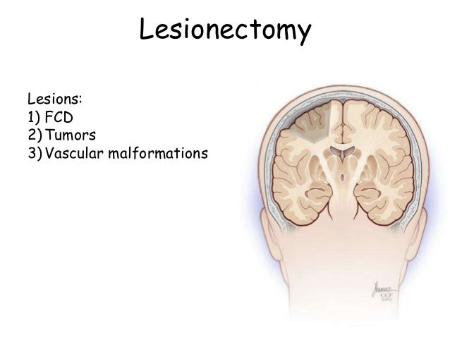 Lesionectomy Surgery in India - Healing Touristry