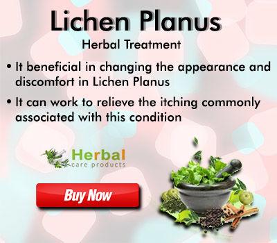 Lichen Planus Herbal Treatment