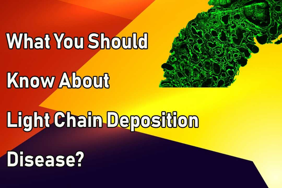 What You Should Know About Light Chain Deposition Disease?