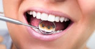 Lingual braces cost in Mumbai | Invisible braces for teeth | Smile Store