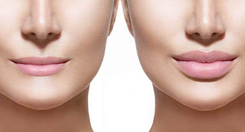 Lip Augmentation Treatment in India | Healing Touristry